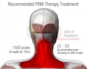 CGHA PBM Treatment Recommendation