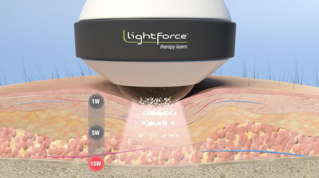 PBM Dosing Video_LightForce_Screenshot 8