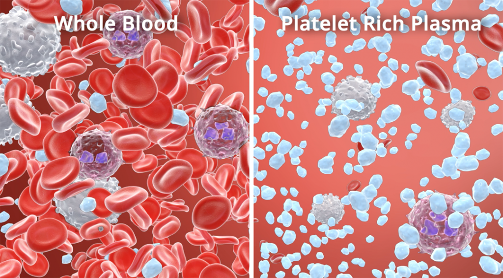 Whole Blood Vs PRP_Small