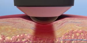 reaching target tissue